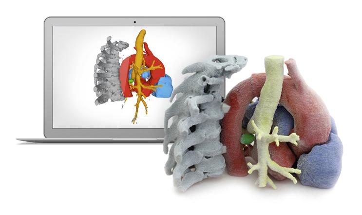 43º Congreso Colombiano de Radiología- Pulmón Impresión 3D